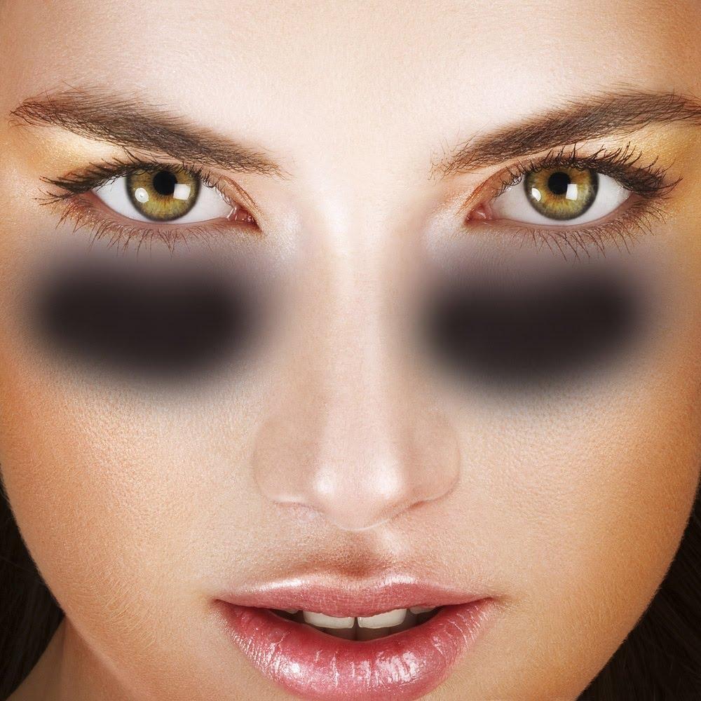 Göz Altı Morluğu Lazer Tedavisi: Göz Altı Morluğuna Dolgu Uygulamaları